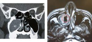 副鼻腔真菌症